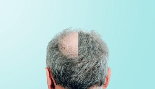 抜け毛・薄毛予防で知っておきたい基本知識を徹底解説!効果的な予防法とは
