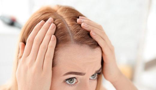 皮膚科で処方される育毛剤とは?AGA治療についても解説