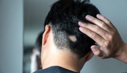 円形脱毛症の原因・治療法を解説!育毛剤は効果がある?