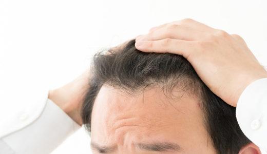 薄毛で前髪が決まらない!おしゃれにカバーできるおすすめ髪型5選