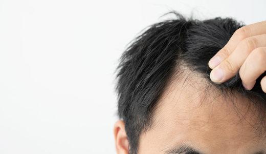 薄毛は分け目からも進行する!?原因と対策を解説